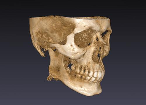 治骨の状態の精密検査